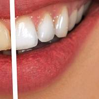 Variety of Dental Implants Bulgaria 20