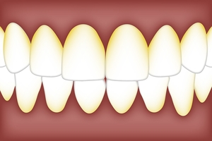 Info about Dental Implants 25